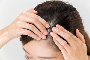 加齢が頭皮や髪に及ぼす影響